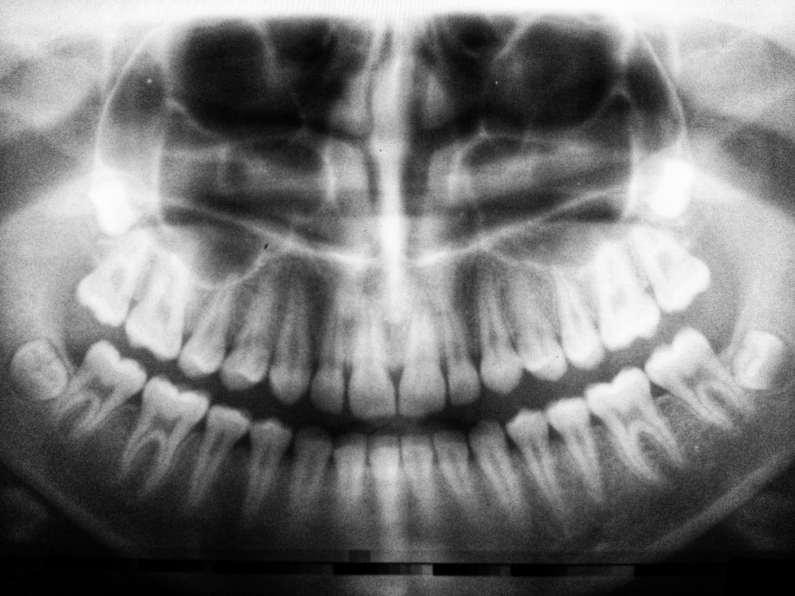 The Importance of Dental X-rays (Radiographs)